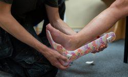 Anpassen einer Fußorthese